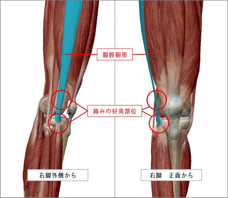 膝の構造 引用:VISIBLE BODY
