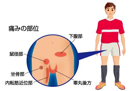 引用:日本整形外科学会HP