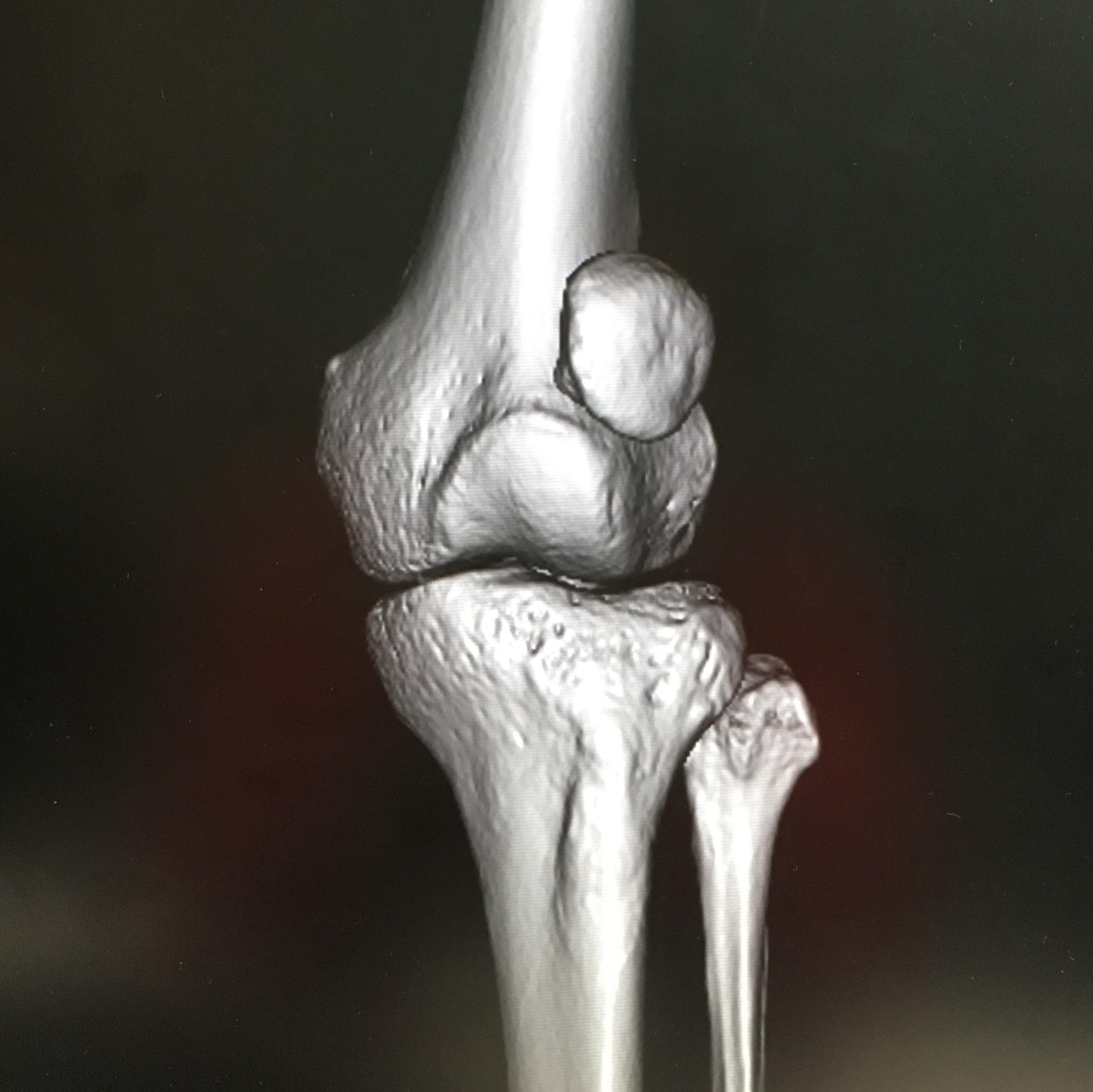 外方偏位した膝蓋骨