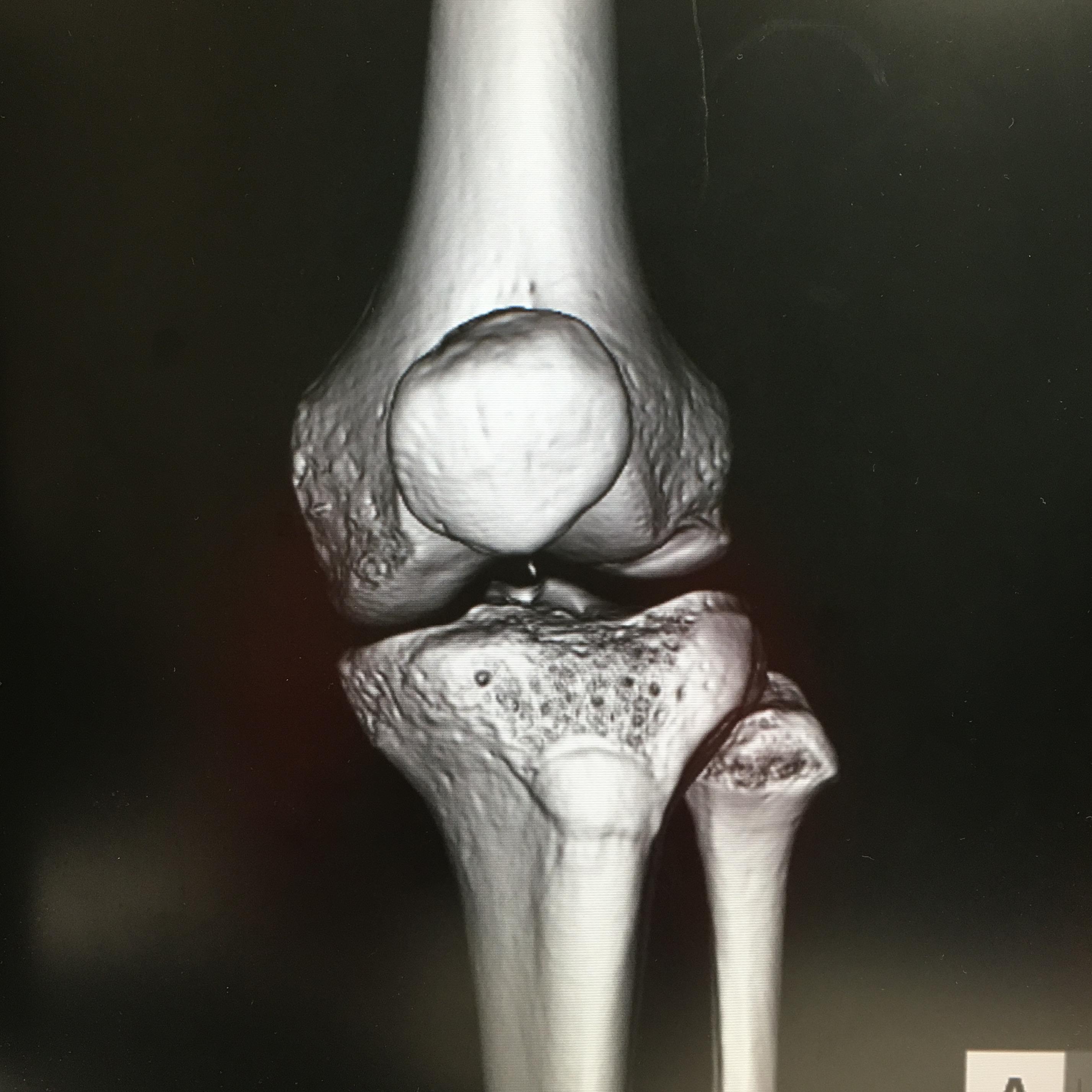 正常な膝蓋骨の位置